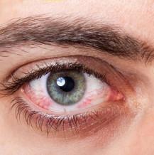 Zapalenie spojówek – objawy i leczenie